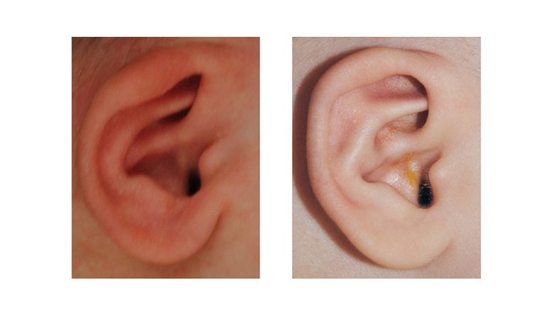 Cryptotia Ear Deformity before and after Ear Molding