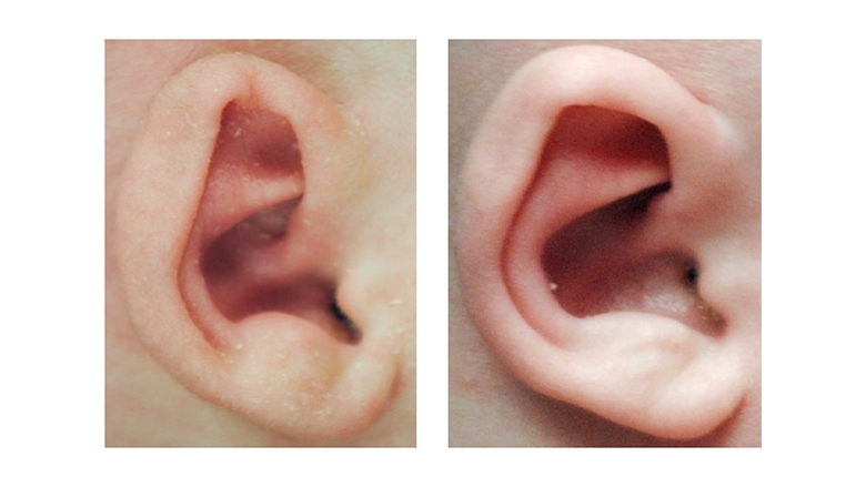 Helical Rim Deformity before and after Ear Molding