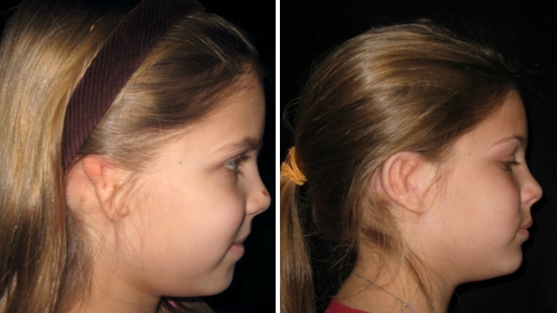 Microtia of the right ear before and after ear reconstruction surgery using rib cartilage