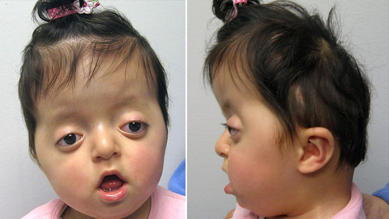 6 month old with Pfieffer syndrome