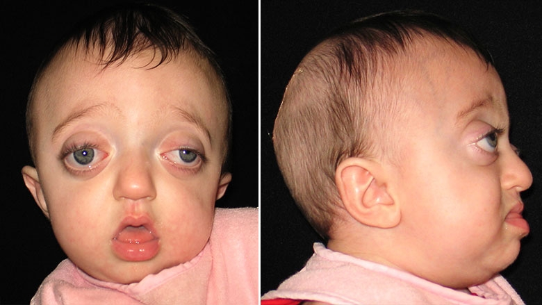 8 month old with Pfieffer Syndrome