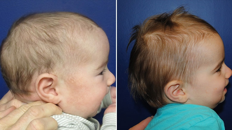 Pre-operative and post-operative comparison of sagittal synostosis corrected in infancy with cranial spring placement.