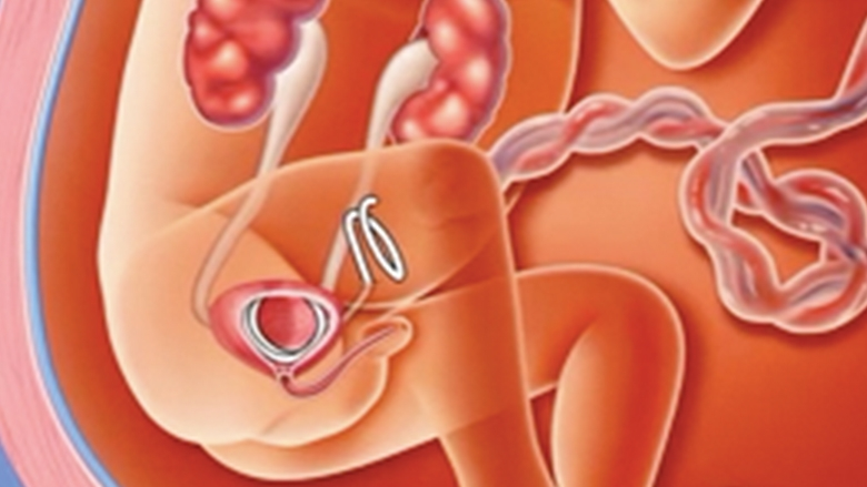 fetal shunt illustration