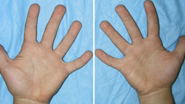 Simple, incomplete syndactyly 8.5 years after surgery
