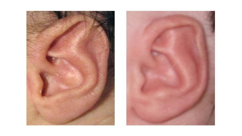 stahl s ear koni polycode co