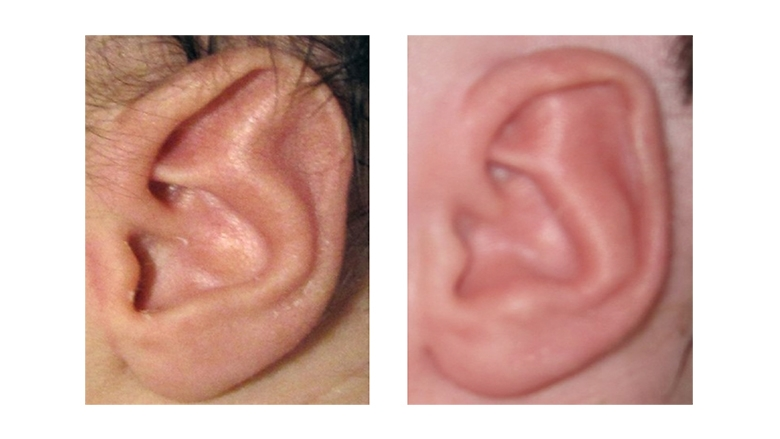 Stahl's Ear Deformity before and after Ear Molding