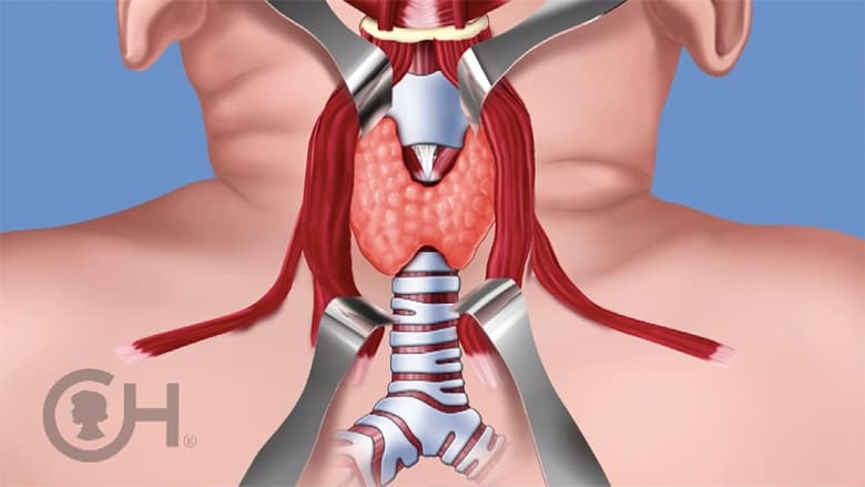 Illustration of thyroid surgery with thyroid exposed