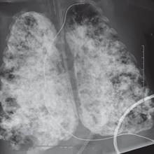 Chest X-ray of an infant with severe CLD
