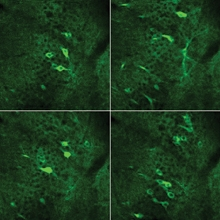 Fluorescent images of neuronal activity