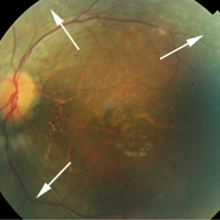 fundus image of left eye