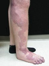 Vascular Malformations Klippel Trenaunay Syndrome 3x4