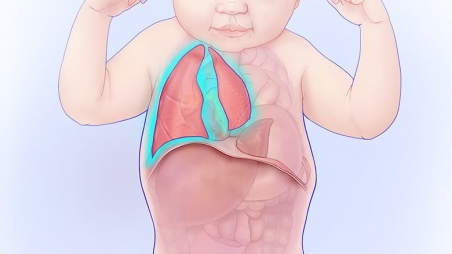 CDH illustration highlighting underdeveloped lungs