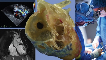 collage of mri images