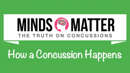 Minds Matter: The Truth on Concussion — How a Concussion Happens