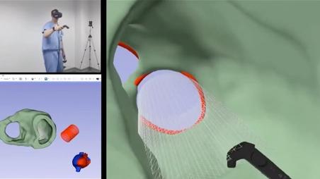 Dr. Jolley Simulated Cardiac Device Virtual Reality