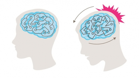 Illustration of how a concussion happens