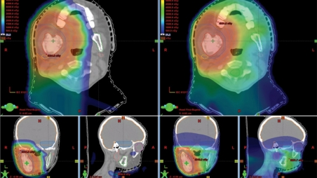 patient with proton therapy