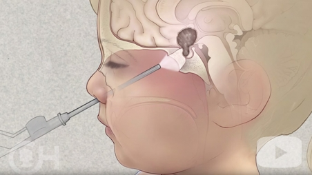Pediatric Brain Tumor video screen