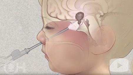 Pediatric Brain Tumor video screen