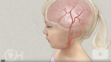 Moyamoya Disease Surgery video screen