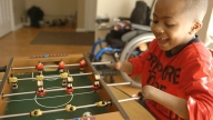 Hand Transplant Patient Smiling Playing Fooseball