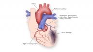 Anomalous Left Coronary Artery from the Left Pulmonary Artery Illustration