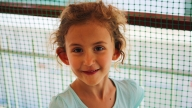 Cora CDH patient