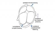 deformational-plagiocephaly illustration