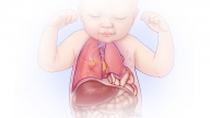 Illustration of CDH showing abdominal organs moving into chest