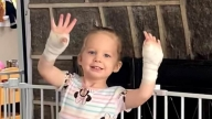 Madelyn after surgery showing her wrapped hands