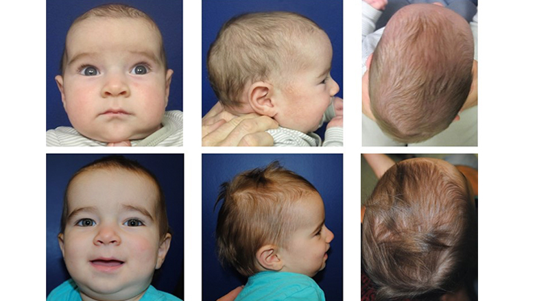 Patient pre- and post- cranial spring procedure