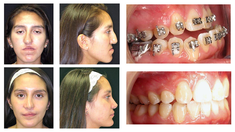 Orthognathic And Jaw Surgery Children S Hospital Of