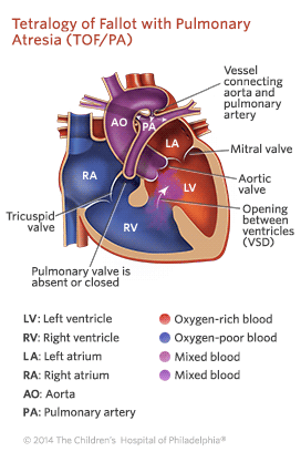 Tetralogy of Fallot with Pulmonary Atresia Illustration