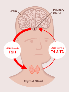 Hypothyroid Axis Image