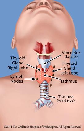 Differentiated Thyroid Cancer Children S Hospital Of Philadelphia
