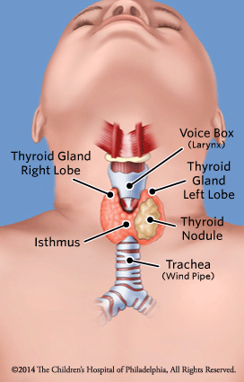 Thyroid Nodule Illustration