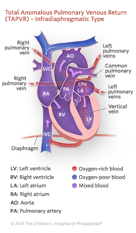 Total Anomalous Pulmonary Venous Return Infradiaphragmatic Type Illustration