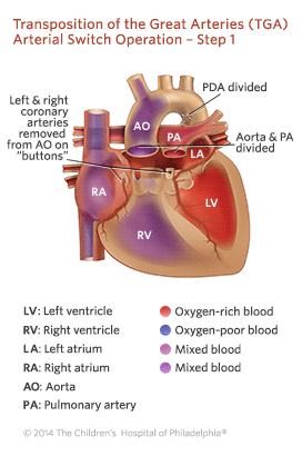 Transposition of the Great Arteries Arterial Switch Operation - Step 1 Illustration