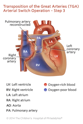 Transposition of the Great Arteries Arterial Switch Operation - Step 3 Illustration