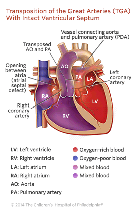 Transposition of the Great Arteries (TGA) With Intact Ventricular Septum