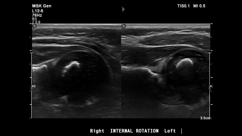 Ultrasound assessment of glenohumeral dysplasia