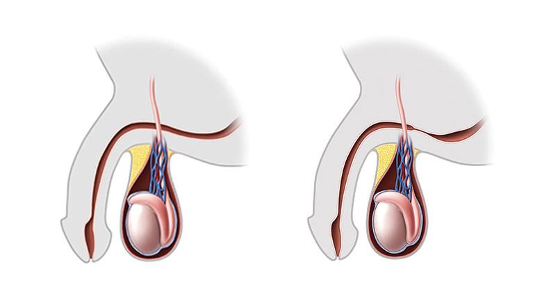 Urethral Stricture | Children's Hospital of Philadelphia
