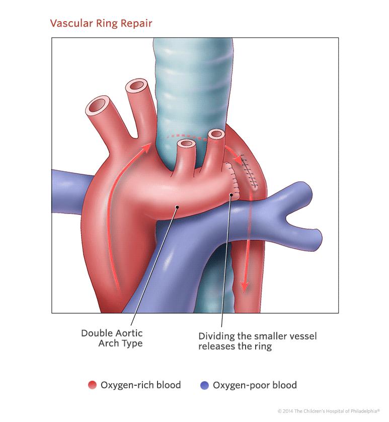 Vascular Ring | Children\'s Hospital of Philadelphia