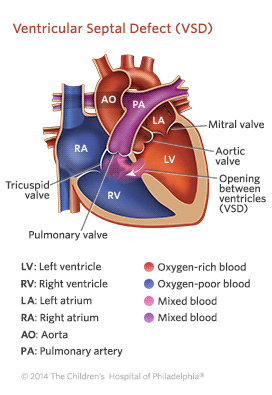 Ventricular Septal Defect Illustration
