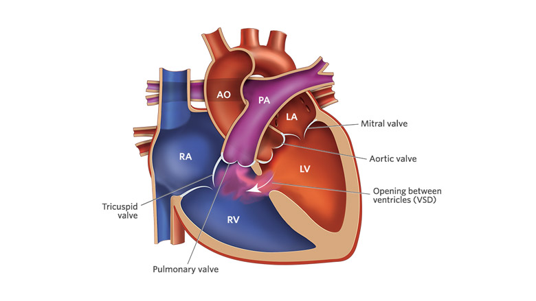 Ventricular Septal Defect Vsd Childrens Hospital Of Philadelphia